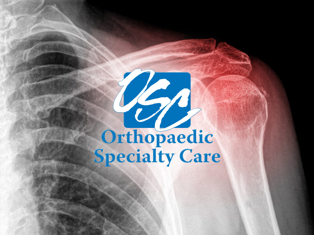 orthopaedic-specialty-care-ocala-services