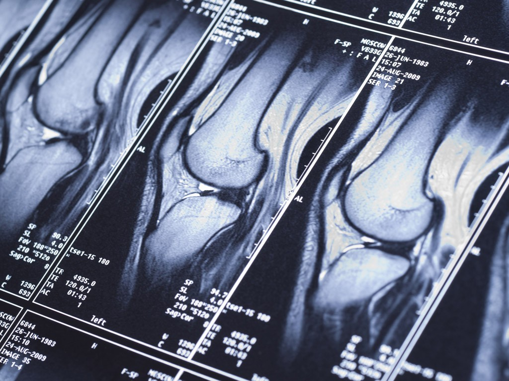 orthopaedic-specialty-care-ocala-knee-xray2