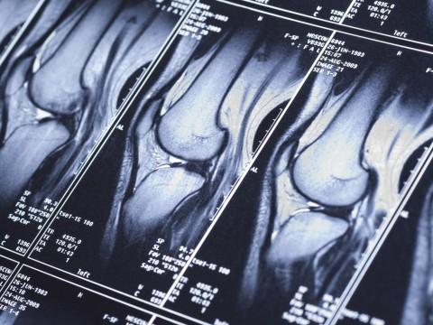 orthopaedic-specialty-care-ocala-knee-xray2