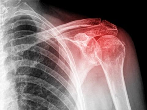 orthopaedic-specialty-care-ocala-shoulder