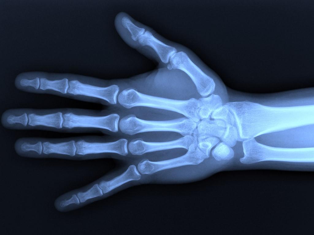 orthopaedic-specialty-care-ocala-hand